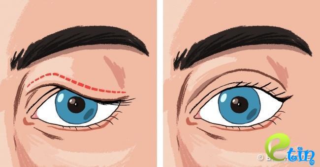 Chẳng cần tốn tiền cắt mí, dễ dàng sở hữu ngay đôi mắt 2 mí bằng những mẹo đơn giản tại nhà