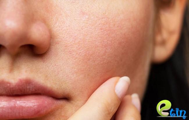 Sự thiếu hụt collagen dễ khiến lỗ chân lông trên da bị to