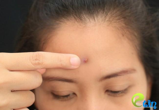 Chỉ nên nặn khi nhân mụn ẩn trồi lên bề mặt da