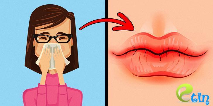 Nhìn đôi môi biết được chuẩn xác 90% tình trạng sức khỏe, có dấu hiệu này cẩn thận ung thư
