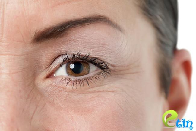 Đôi mắt là nơi xuất hiện các dấu hiệu lão hóa đầu tiên