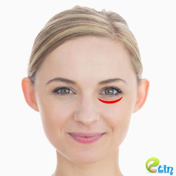 Nếp nhăn tiết lộ sức khỏe [1]: Dưới bọng mắt ngủ không đủ giấc, đường chân mày trái cảnh báo lá lách